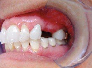 mini dental implants Albuquerque, NM